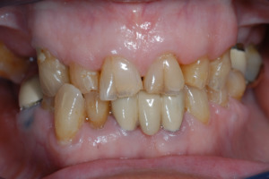 Figure 3 – If the condition is not prevented, the erosive tooth wear progresses and the loss of incisal edge collapses resulting in visible changes seen by both the patient and dentist.