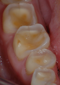 Figure 6 – If the central areas merge, the destruction of the tooth detiorates, resultin in loss of crown height.